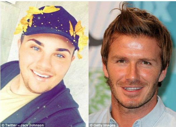 ហេតុតែចង់ស្អាតដូច David Beckham យុវវ័យម្នាក់ហ៊ានរងផ្លែកាំបិត